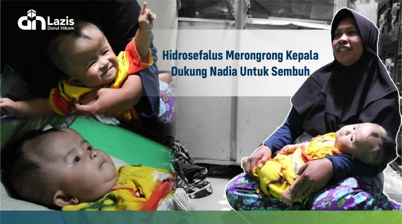 Bantu Nadia Berjuang Melawan Hidrosefalus
